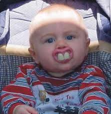 baby yang kebesaran gigi..............seperti Rabbit !!!! Mana WOWnyaaaaaaaaaaaaaaa