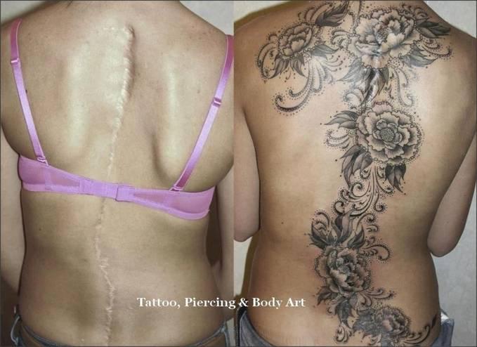 Tatto yang sengaja dibuat untuk menutupi bekas jahitan luka, WOW tidak ada sedikit pun yang terlihat (jahitan luka) setelah di buat tatto