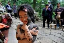 Tragis !, Bocah Belang Ini Dibuang Ortunya Di Hutan !