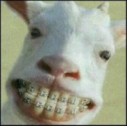 Gue heran punya gigi bagus tapi dikasih Behel. Bukankah itu gaya hidup yg sia2, mubazir & ga ada gunanya !! Cukup Kambing saja yg pake Behel hahahaha