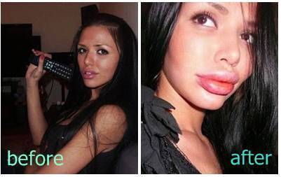Svetlana Davydova dari Russia memiliki wajah yg cukup cantik . tetapi dia masih aja merasa kurang, karena dia mencoba melakukan operasi plastik suntik silicon untuk membuat bibirnya tampak lebih seksi. namun hasilnya justru bikin bibirnya dower