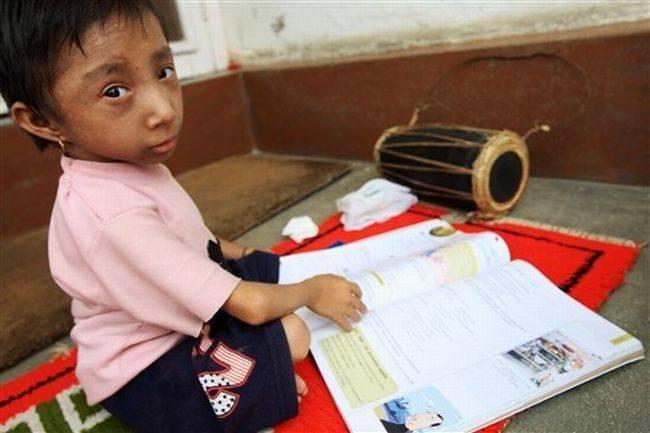 jangan lupa wow Khagendra Thapa Magar (lahir tahun 1992) yang saat ini berusia 17 tahun, adalah manusia dewasa terkecil di dunia. Tingginya 60 cm dan beratnya 5,5 Kg, waktu dilahirkan beratnya hanya 600 gram. Magar berasal dari wilayah (distrik