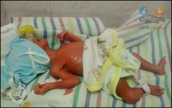 Iffa, Srikandi Kecil Terlahir 650 Gram yang Berjuang Untuk Hidup Pada pagi hari tanggal 27 September 2012, Ibu Atika merasakan kontraksi meskipun kehamilan baru memasuki bulan ke-6. Bermaksud memeriksakan tentang apa yang terjadi, ketika sampa