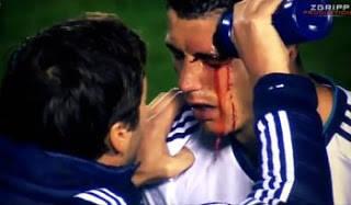 Kabar Terbaru Christiano Ronaldo Pasca Terancam Buta Permanen Timnas Portugal tak ingin mengambil resiko ketika menyadari kalau striker andalan mereka Cristiano Ronaldo mengalami cedera mata hebat. Karena itu, CR7 diistirahatkan dari membela