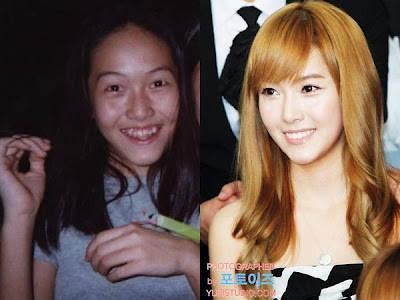 Hasil sesudah dan sebelum oplas.. (Jessica SNSD)