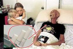 Rp 2 Triliun Habis untuk Pengobatan akibat Rokok