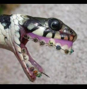 wow. ternyata ngak cuman manusia aja yang pakai behel, ternyata ular juga bisa.. jngan lupa wow nya ea...