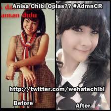 Ternyata Anisa Chibi juga oplas lhooo :D Liat perbedaannya! Jangan lupa WOWnya yah!
