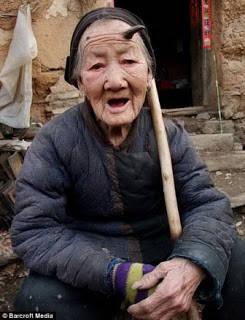 Granny Zhao, nama panggilannya dulu, adalah seorang wanita tua dari Zhanjiang yang menjadi terkenal karena tumbuh 'tanduk' di dahinya. Menurut keluarganya, tanduk itu muncul sekitar 3 tahun yang lalu, sebelumnya adalah tahi lalat kecil biasa