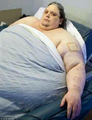 Astaga!! di Rusia dikabarkan ada seorang lelaki penyakit badan gajah. WOW donk!!!
