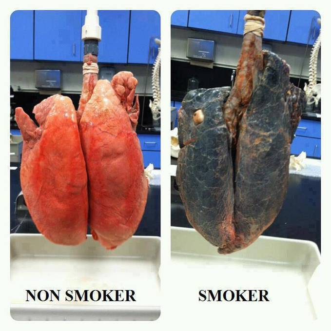 share please and encourage others to quit smoking...!!! :(