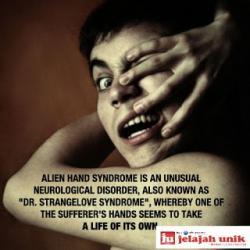Alien Hand Syndrome kadang-kadang juga disebut secara sinonim dengan tangan anarkis a