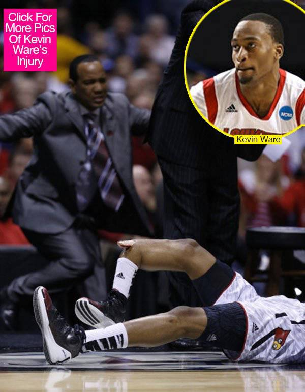 Kevin Ware ,, remember the bone is 6 INCHES out of the his leg , and all hes screaming WIN THIS GAME !!