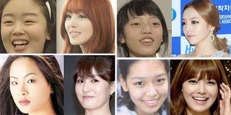 foto masa lalu artis korea yang berubah drastis Sunhwa Secret - Hara KARA - Kim Sun Ah - Sooyoung Girls Generation