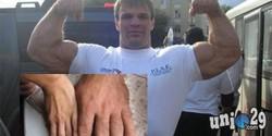 Lelaki Rusia mirip raksasa Hulk