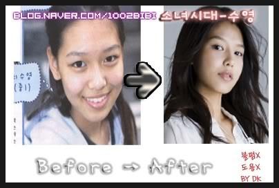 SooYoung Girls Generation l sebelum dan sesudah operasi plastik