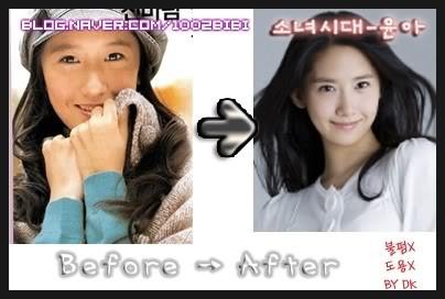 YooNa Girls Generation l sebelum dan sesudah operasi plastik