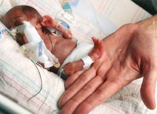 Amillia Taylor dicatat untuk menjadi bayi terkecil yang pernah lahir dan untungnya, hanya dua minggu sebelum batas aborsi legal