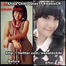 Bukti Anisa CheBe OPLAS ! dari Hitam pekat berdaki jadi putih, gitu aja ngejagoin SNSD Oplas buat Nge Bash SNSD, jadi sebaiknya hati hati ngomong ! Chitters Klik WOW, basmi Plagiarisme dari Indonesia !