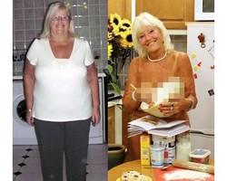 Terobsesi Pose Bugil di Kalender, Wanita 66 Tahun Pangkas Berat 63 kg