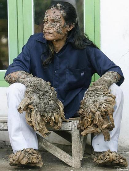 Laki-laki Pohon Indonesia yang dikenal sebagai Dede menderita karena kombinasi Human Papilloma Virus (HPV) dan kekacauan genetik. Pertumbuhan kutil yang terus menerus sudah mengambil-alih sebagian tubuhnya.