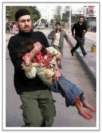 1 WOW = 100 Doa , 1 Komen = 1000 Berkah berbagi,..Pray For Palestine banyak yang lebih parah lagi, ini hanya 1 dari beberapa korban