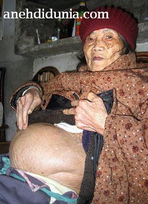 Home » Berita Aneh Unik » Aneh Banget Nenek Melahirkan Bayi Mumi Aneh Banget Nenek Melahirkan Bayi Mumi Beijing, Dokter yang memeriksa seorang perempuan tua China dengan keluhan sakit perut, terkejut ketika mengetahui bahwa wanita tersebut H