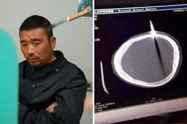 Pria ini berjalan santai ke rumah sakit dengan pisau menancap dikepalanya , WOW (Article+2pics) See More >> http://gallianmachi.blogspot.com/2013/11/pria-ini-berjalan-santai-ke-rumah-sakit.html