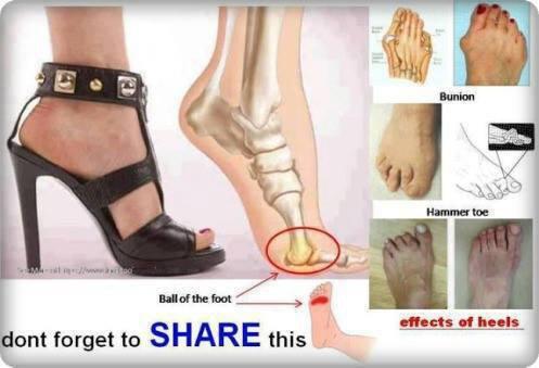 Efek menggunakan sepatu high heels..