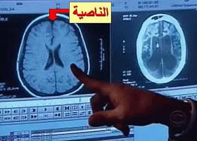 Selama ini, para ilmuwan tidak mengetahui di bagian otak mana pada manusia yang paling bertanggung jawab terhadap sebuah dusta atau kebohongan. Orang hanya tahu kalau dusta itu muncul dari sebuah ucapan, tapi tidak mengetahui kalau itu ada hubu