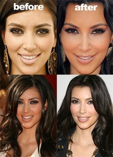 Kim dikabarkan menjalani operasi plastik untuk membuat hidungnya lebih mancung. Bukan hanya dihidung, operasi juga dilakukan pada dagunya agar lebih lancip. Bukan hanya sekadar operasi, kekasih Kanye West itu juga disebut-sebut melakukan implan