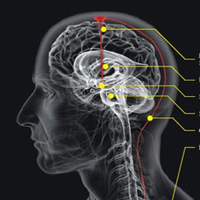 7 Kebiasaan Buruk Yang Dapat Merusak Otak