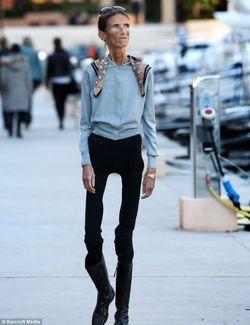 Wanita Terkurus diDunia Wanita ini bernama Valeria Levitin,berat badan nya hanya 19kg. Valeria Levitin menjadi wanita terkurus di dunia. Hanya kulit dan rambut yang membungkus tulang di tubuhnya. Ia menderita gangguan pola makan,anoreksia