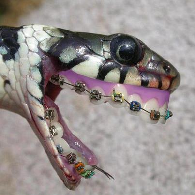 bukan cuma manusia yg mau pake behel,tapi ular juga lho.klik wow dan temukan dibalik rahasia ini:D