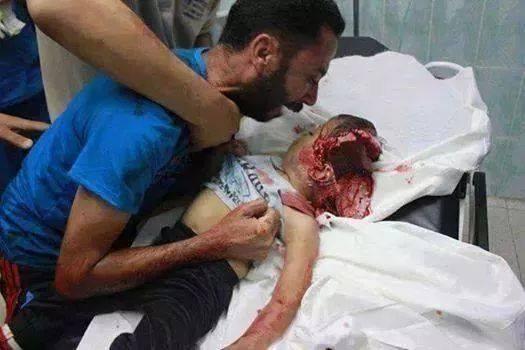 Astagfirrulloh.. inilah kekejaman Zionis Israel di GAZA :( Pray For Gaza Save To Palestine