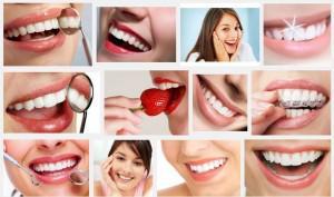 Agar Gigi Putih Dengan Cara Alami