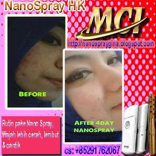 Jadikan wajahmu cerah, lembut dan cantik alami terbebas dari jerawat, komedo, flek hitam,kulit kusam,wajah berminyak,kulit kendur dengan Nano Spray 2. Produk kesehatan dan kecantikan Perawatan Kulit Wajah alami teknologi terbaru dari Jepang.