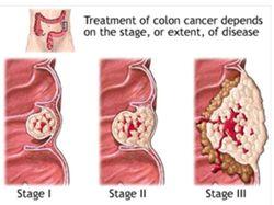 Obat Tumor Rahang Atas