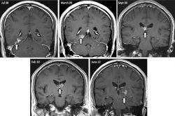 Cacing Pita Hidup di Otak Pria Inggris selama 4 Tahun