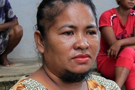 Pasca melahirkan anaknya, Agustina Dorman (38), wanita asal desa Penaga, Kepulauan Riau, memiliki jenggot lebat.