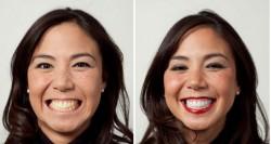 Cara Mudah Hilangkan Gigi Kuning dalam Waktu 3 Menit