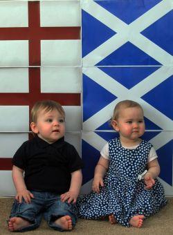 Bayi Kembar yang Lahir Beda Negara. WOW!