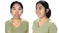 Wanita Thailand Ini Diberi Hadiah Operasi Plastik Di Korea, Lihat Jadinya!