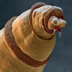Hal-hal Disekitarmu Jika Dilihat Dengan Mikroskop Elektron