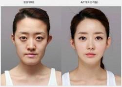 28 Foto Operasi Plastik Orang Korea yang Bikin Kamu Geleng-geleng Kepala
