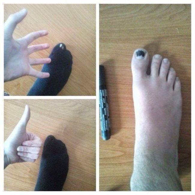Punya kaos kaki bolong diujung jempol? Spidol aja kukumu jadi warna kaos kaki yang bolong itu..JEnius!