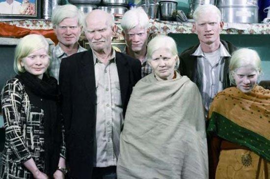 Keluarga Albino Keluarga Pullan yang hidup di India merupakan keluarga albino terbanyak, sebab seluruh anggota keluarga mereka memiliki ciri khas kulit albino. Tidak minder, mereka malah bersyukur pada Tuhan.