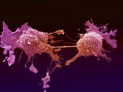 Kenali Tujuh Tanda-Tanda Penyakit Kanker, Agar Pulsker Lebih Waspada