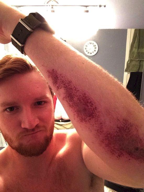 Pria ini lagi asik memamerkan luka setelah terjatuh, tapi mungkin dia nggak sadar kalau ada seseorang yang belum sempurna memakai celana.