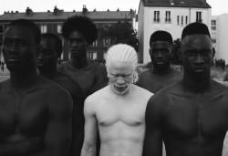 11 Foto Model Albino Ini Keren Banget!